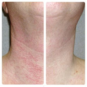 intense pulse light before and after 4 treatments